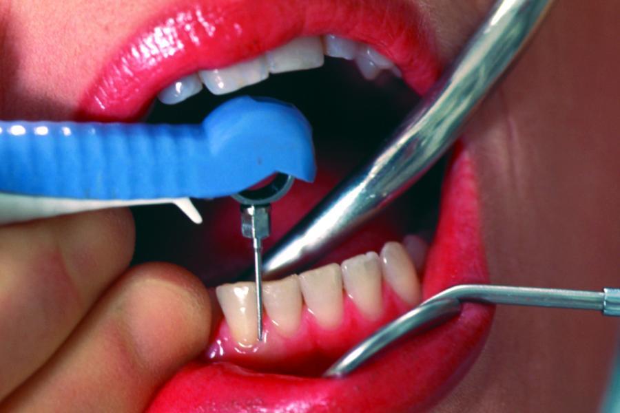 Но удаление зубного камня в домашних условиях 6
