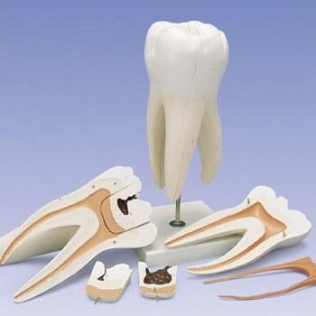 к удалению молочных зубов: